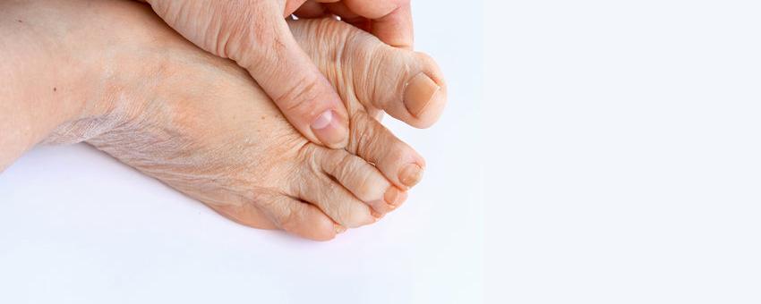 Que faire contre le psoriasis en goutte ?
